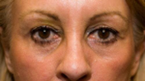 Eyelid Surgery Gallery - Patient 58490571 - Image 4