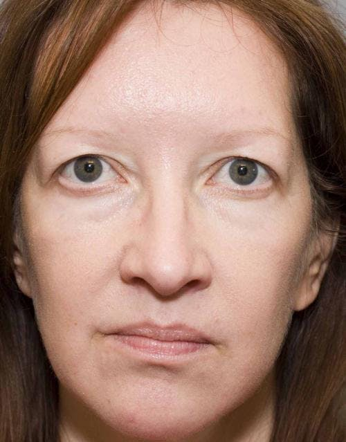 Eyelid Surgery Gallery - Patient 58490573 - Image 1