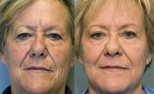 Laser Treatments Gallery - Patient 58490581 - Image 1