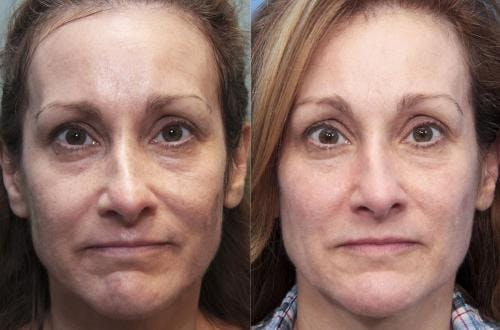 Laser Treatments Gallery - Patient 58490582 - Image 1