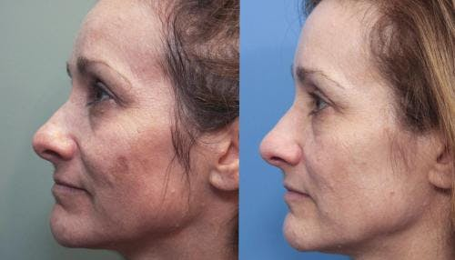 Laser Treatments Gallery - Patient 58490582 - Image 2