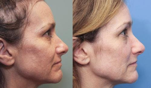 Laser Treatments Gallery - Patient 58490582 - Image 3