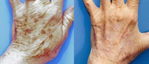 Laser Treatments Gallery - Patient 58490583 - Image 2