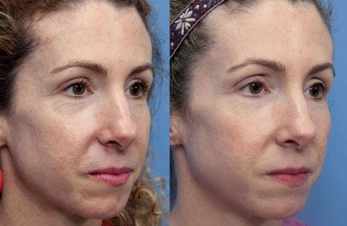 Laser Treatments Gallery - Patient 58490584 - Image 1