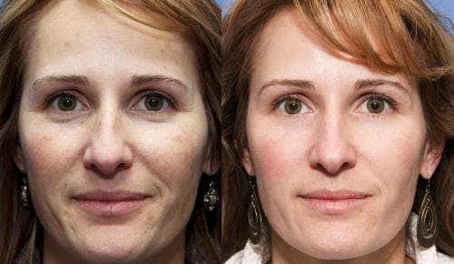 Laser Treatments Gallery - Patient 58490586 - Image 1
