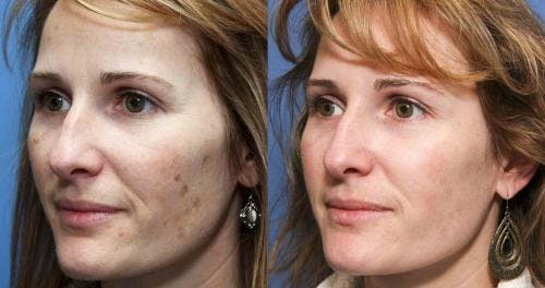 Laser Treatments Gallery - Patient 58490586 - Image 2