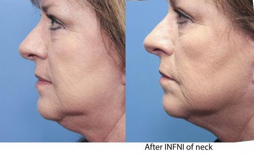 Infini Gallery - Patient 58490587 - Image 1