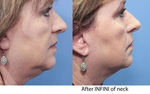 Infini Gallery - Patient 58490587 - Image 2