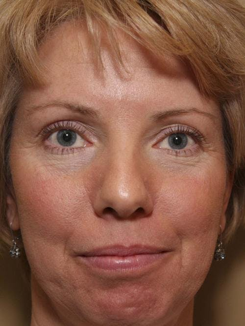 Laser Treatments Gallery - Patient 58490589 - Image 1