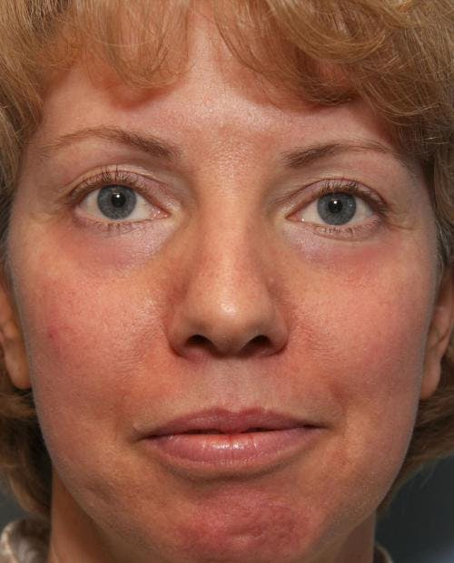 Laser Treatments Gallery - Patient 58490589 - Image 2