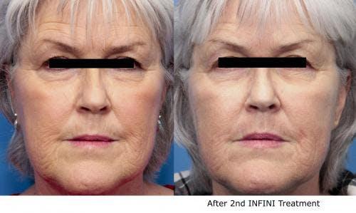 Infini Gallery - Patient 58490588 - Image 1