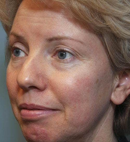 Laser Treatments Gallery - Patient 58490589 - Image 3