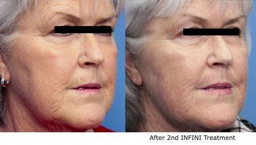 Infini Gallery - Patient 58490588 - Image 2