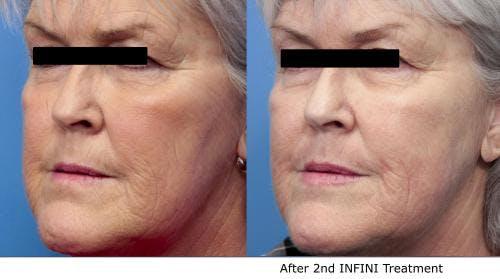 Infini Gallery - Patient 58490588 - Image 3