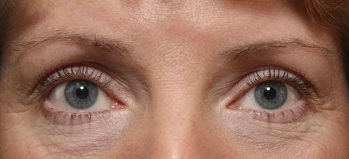 Laser Treatments Gallery - Patient 58490589 - Image 5