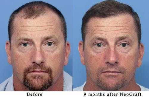 NeoGraft Hair Restoration Gallery - Patient 58490595 - Image 1