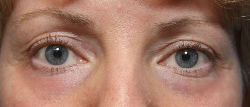 Laser Treatments Gallery - Patient 58490589 - Image 6