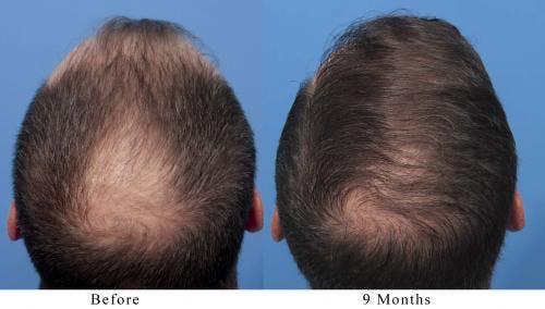 NeoGraft Hair Restoration Gallery - Patient 58490595 - Image 2