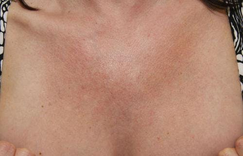 Laser Treatments Gallery - Patient 58490593 - Image 1