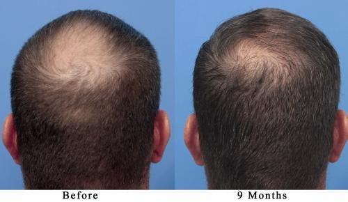 NeoGraft Hair Restoration Gallery - Patient 58490595 - Image 3