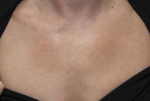 Laser Treatments Gallery - Patient 58490593 - Image 2