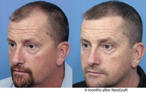 NeoGraft Hair Restoration Gallery - Patient 58490595 - Image 4
