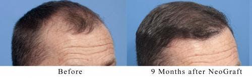 NeoGraft Hair Restoration Gallery - Patient 58490595 - Image 5