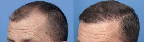 NeoGraft Hair Restoration Gallery - Patient 58490595 - Image 6