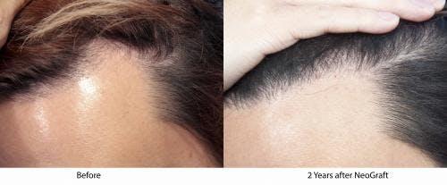 NeoGraft Hair Restoration Gallery - Patient 58490596 - Image 2