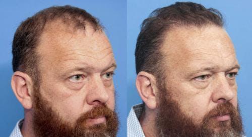 NeoGraft Hair Restoration Gallery - Patient 58490599 - Image 1
