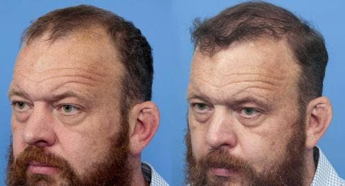 NeoGraft Hair Restoration Gallery - Patient 58490599 - Image 3