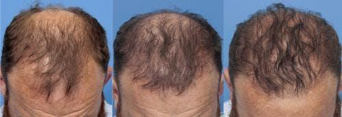 NeoGraft Hair Restoration Gallery - Patient 58490599 - Image 5