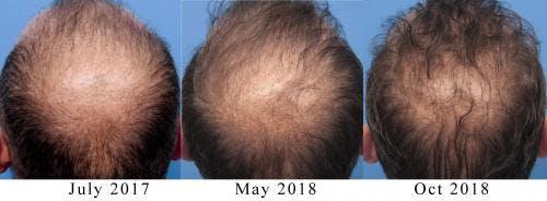 NeoGraft Hair Restoration Gallery - Patient 58490599 - Image 6