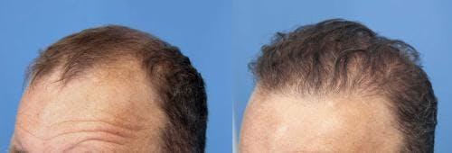 NeoGraft Hair Restoration Gallery - Patient 58490599 - Image 7