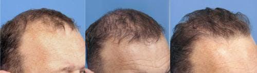 NeoGraft Hair Restoration Gallery - Patient 58490599 - Image 8