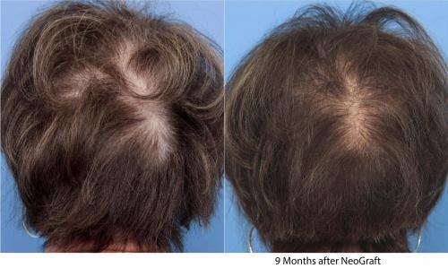 NeoGraft Hair Restoration Gallery - Patient 58490601 - Image 1