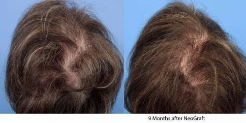 NeoGraft Hair Restoration Gallery - Patient 58490601 - Image 2
