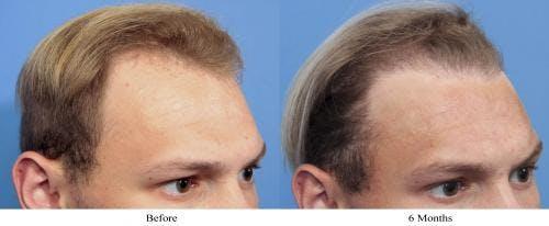 NeoGraft Hair Restoration Gallery - Patient 58490603 - Image 1
