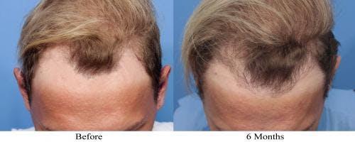 NeoGraft Hair Restoration Gallery - Patient 58490603 - Image 2