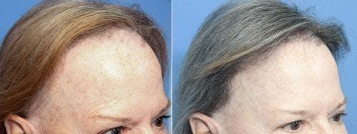 NeoGraft Hair Restoration Gallery - Patient 58490606 - Image 1