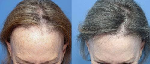 NeoGraft Hair Restoration Gallery - Patient 58490606 - Image 2