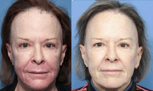 NeoGraft Hair Restoration Gallery - Patient 58490606 - Image 3