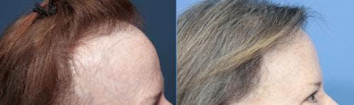 NeoGraft Hair Restoration Gallery - Patient 58490606 - Image 4