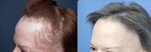 NeoGraft Hair Restoration Gallery - Patient 58490606 - Image 5