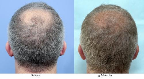 NeoGraft Hair Restoration Gallery - Patient 58490608 - Image 1