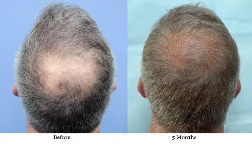 NeoGraft Hair Restoration Gallery - Patient 58490608 - Image 2