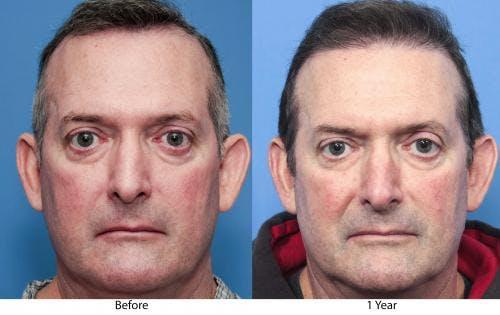 NeoGraft Hair Restoration Gallery - Patient 58490614 - Image 1