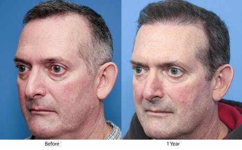 NeoGraft Hair Restoration Gallery - Patient 58490614 - Image 2
