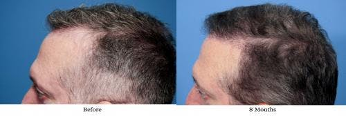 NeoGraft Hair Restoration Gallery - Patient 58490614 - Image 5
