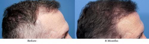 NeoGraft Hair Restoration Gallery - Patient 58490614 - Image 6